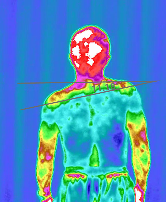 红外热图脊柱健康早筛